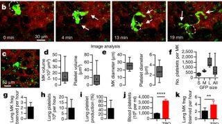 【肺で造血】肺にまさかの「造血」機能、米研究者が発見 日本ではかなり昔に腸内造血⁉ 赤血球が万能細胞⁉があると唱えている説がある【千島学説】